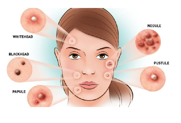 how to remove pimple 2